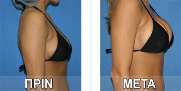 Γεωργία Κ., η οποία έχει φωτογραφίσει τα  τα μεγαλωμένα στήθη της πριν και μετά τη χρήση του τζελ και τα χάπια για αύξηση μαστού.