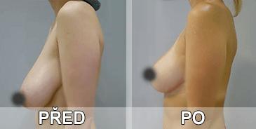 Cermaka C., která se objevila zvětšených ňader před a po použití gelu a prášky pro trvalé zvětšení prsou.